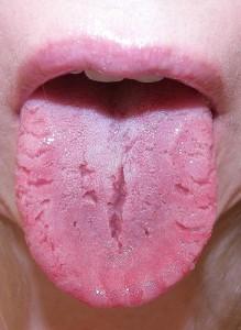 tongue-cracks