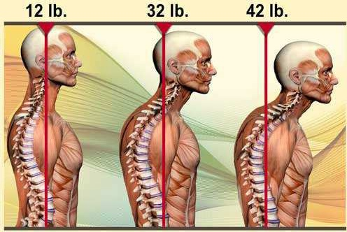 Is Your Head Posture Causing You Pain?