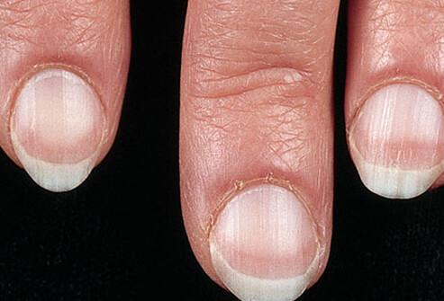 Лечение грибка ногтей магнезией