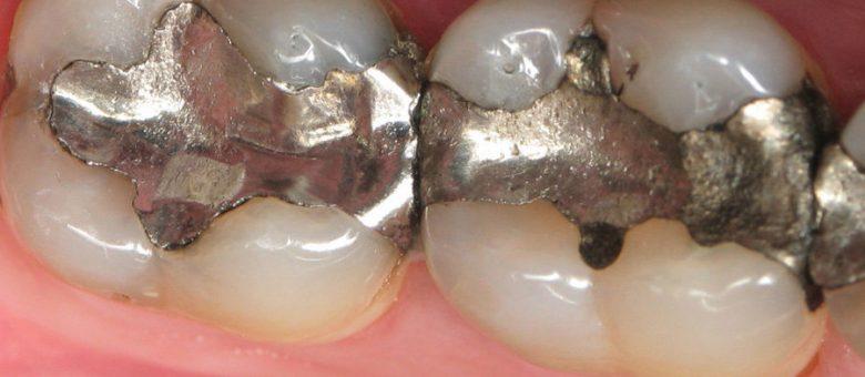 How Mercury Dental Fillings Destroy Your Health